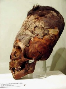 Cranial Deformation - Elongated Skull